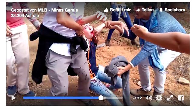 Polizei schießt Mädchen mit Gummikugeln ins Gesicht (Screenshot Video MLB auf facebook)